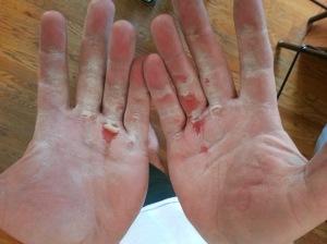 hands-tore-up-jan-17-2014