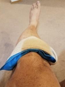 icing-knee